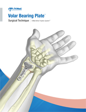 Volar Bearing Plate surgical technique manual cover