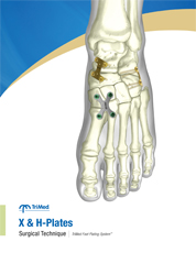 X-plate surgical technique manual cover