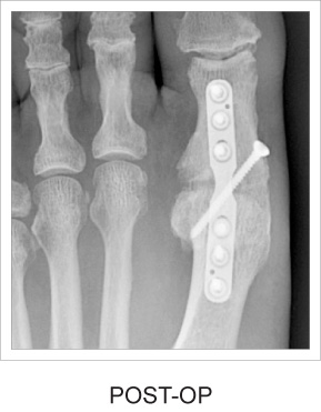 Post-op x-ray example
