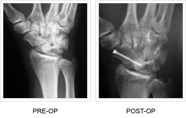 Pre-op and Post-op x-ray comparison
