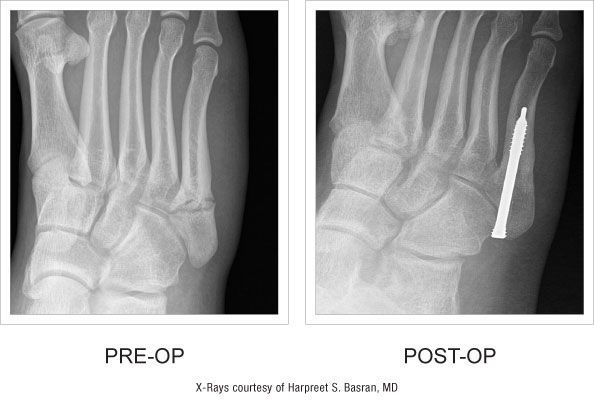 Jones Screw pre and post-op x-ray comparison