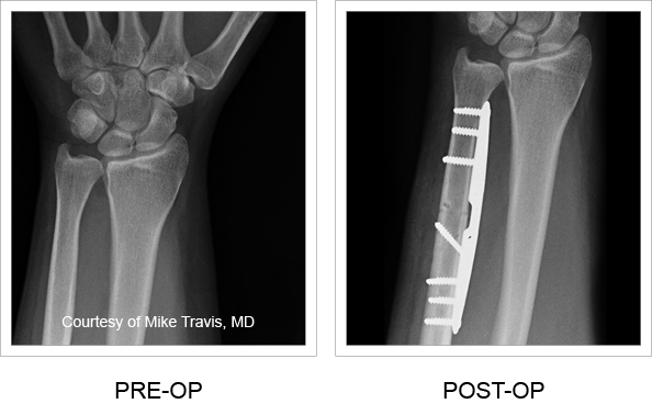 X-rays from pre-op and post-op