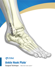 Ankle Hook Plate surgical technique manual cover