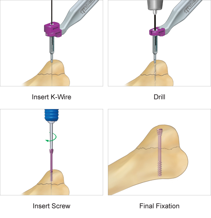 Step-by-step surgical technique guide for the screw implant system