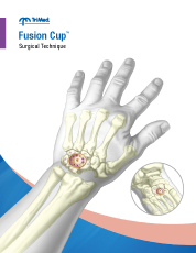 Fusion Cup surgical technique manual cover