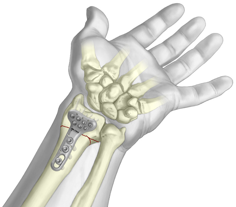 Graphic of Volar Fixed Angle Plate fixated to periarticular radial fracture.