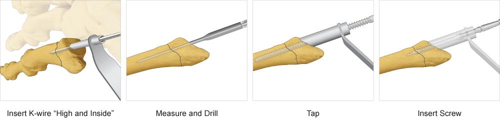 Jones Screw surgical technique
