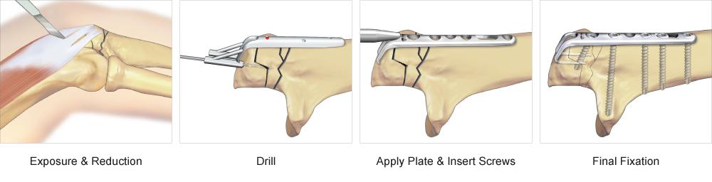 Olecranon Hook Plate surgical technique
