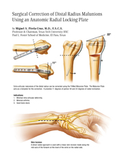 Radial Column Malunion Plate surgical technique manual cover