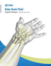 Volar Hook Plate surgical technique manual cover