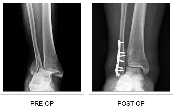 Posterior pre and post-op x-rays of the Ankle Hook Plate