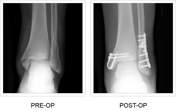 Medial Malleolar Sled pre and post-op x-rays