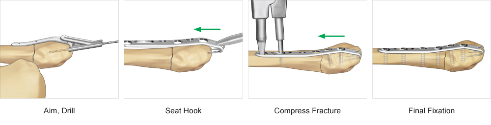 Surgical technique for Ankle Hook Plate fixation