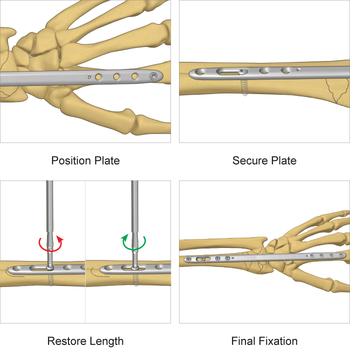 Step-by-step surgical technique guide for TriMed's Bridge Plate system