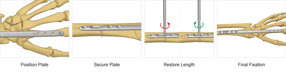 Step-by-Step surgical technique for Bridge Plate fixation