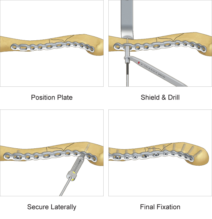 Surgical technique for TriMed's Anterior Clavicle Plate system