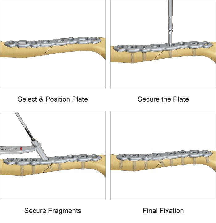 Superior Midshaft Clavicle Plate surgical technique