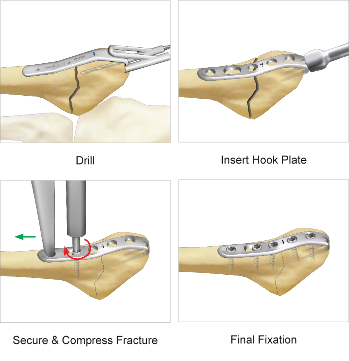Jones Fracture Plate surgical technique