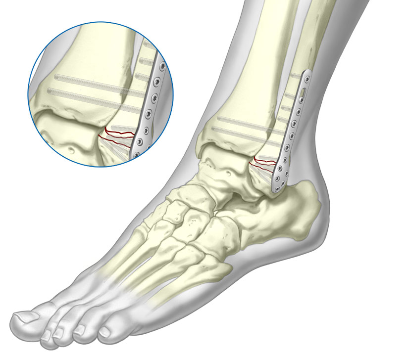 4.0 Cortical Screw system fixated to Fibula fracture