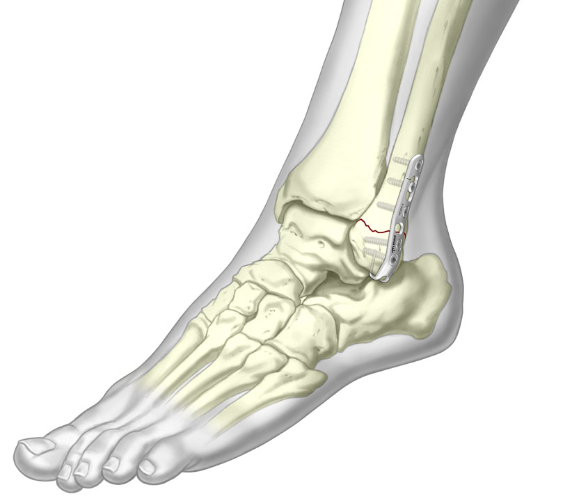 Illustrated Ankle Hook Plate fixated to fibula fracture