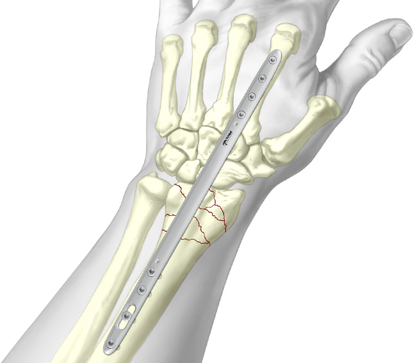 Bridge Plate wrist fixation system fixated to complex radial fracture