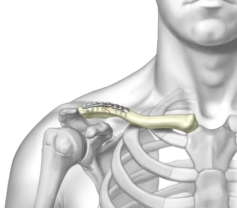 3D graphic of Superior Lateral Clavicle Plate System