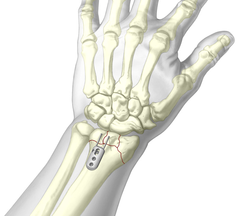3D Illustration of TriMed's Dorsal Buttress Pin System fixated to wrist fracture