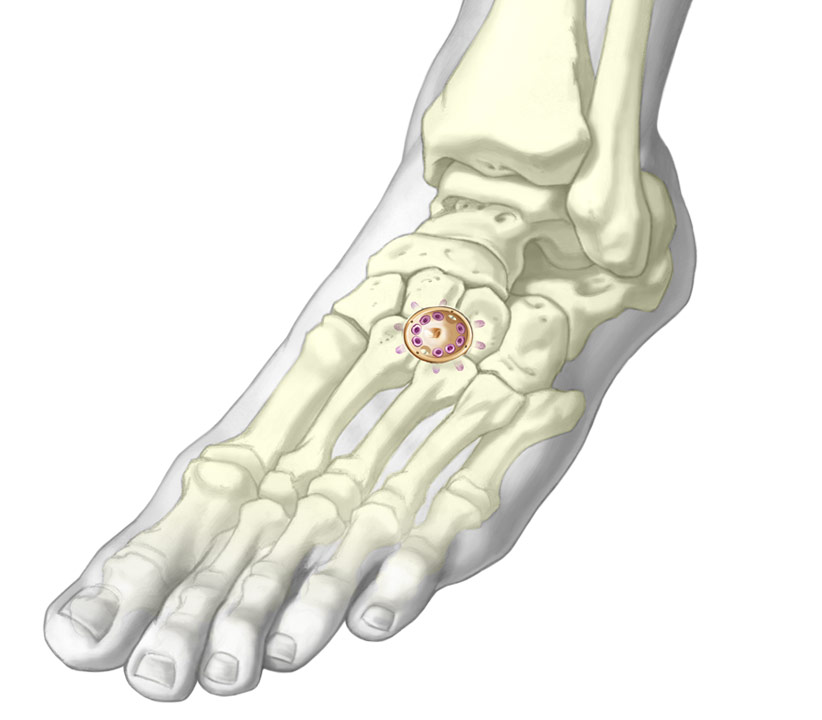 Lower Fusion Cup Fixation system installed onto metatarsal and cuneiform bones