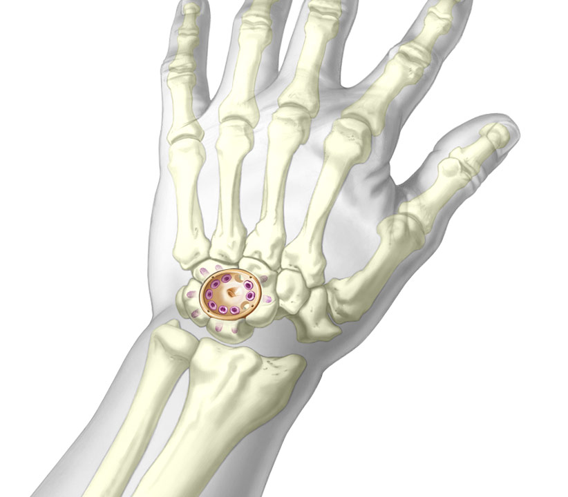 Upper fusion cup illustration of fixation in wrist