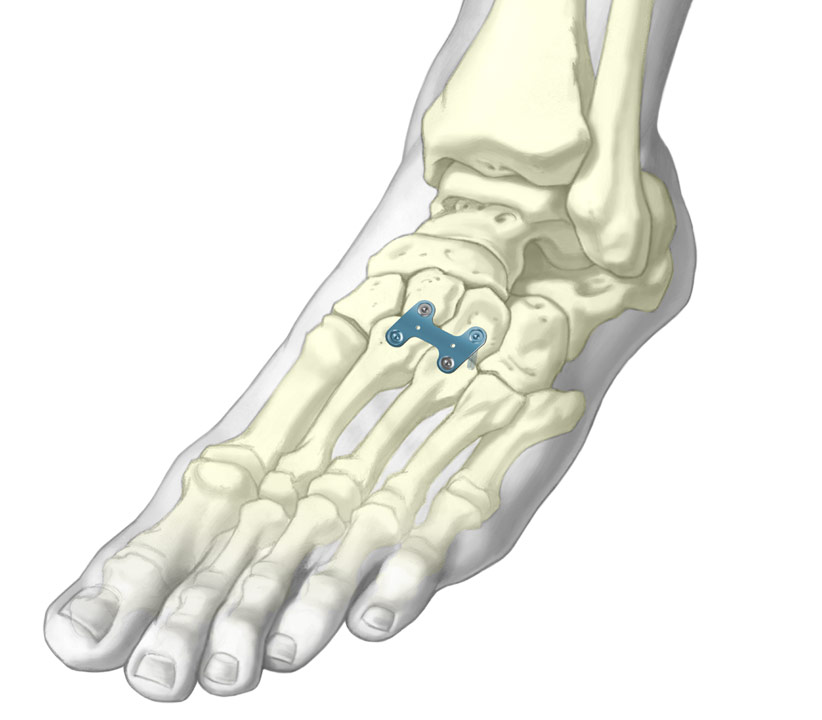 3D Illustration of H-plate for cuneiform or metatarsal osteotomies