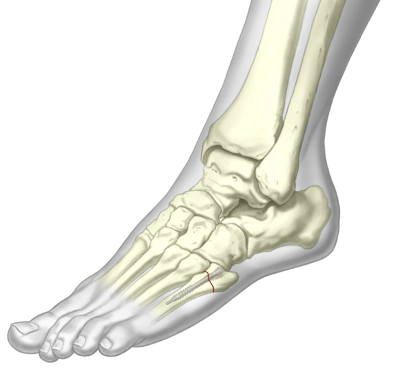 Jones screw on 5th metatarsal fracture