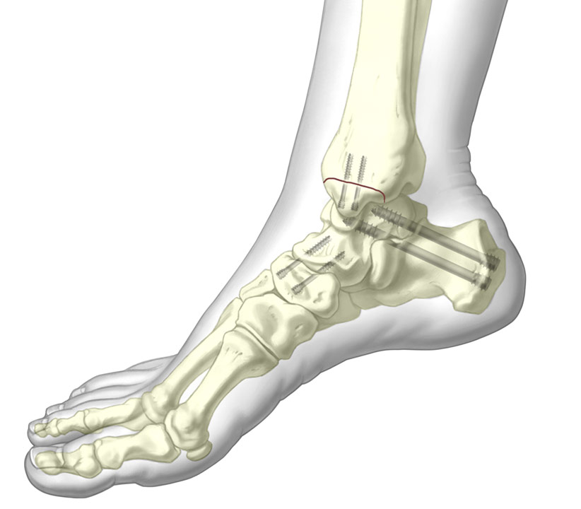 4.5, 5.5, and 7.3mm Cannulated Screw System installed into the Tibia, Cuneiform, and Calcaneus bones.
