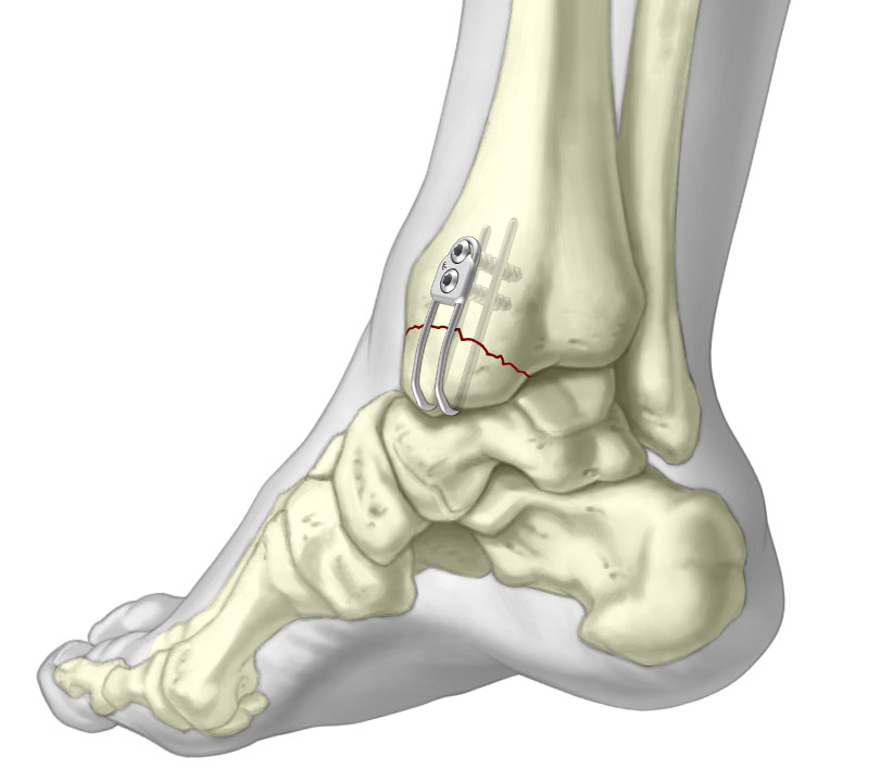 Medial malleolar sled fixated to periarticular Tibia fracture