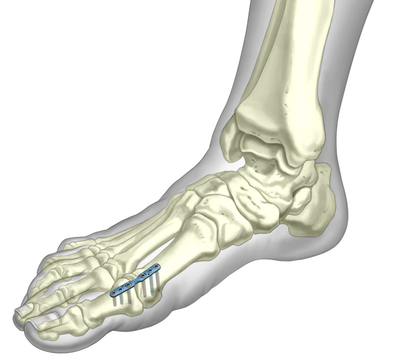 3D illustration of MTPJ plate fixated to Metatarsal bones