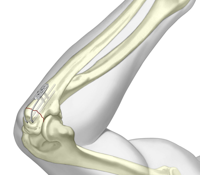 Olecranon Sled final fixation over periarticular fracture