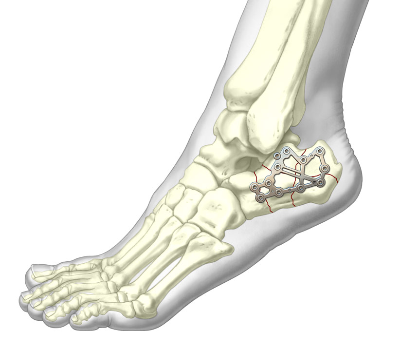 Calcaneal Perimeter Plate system over complex calcaneal fracture