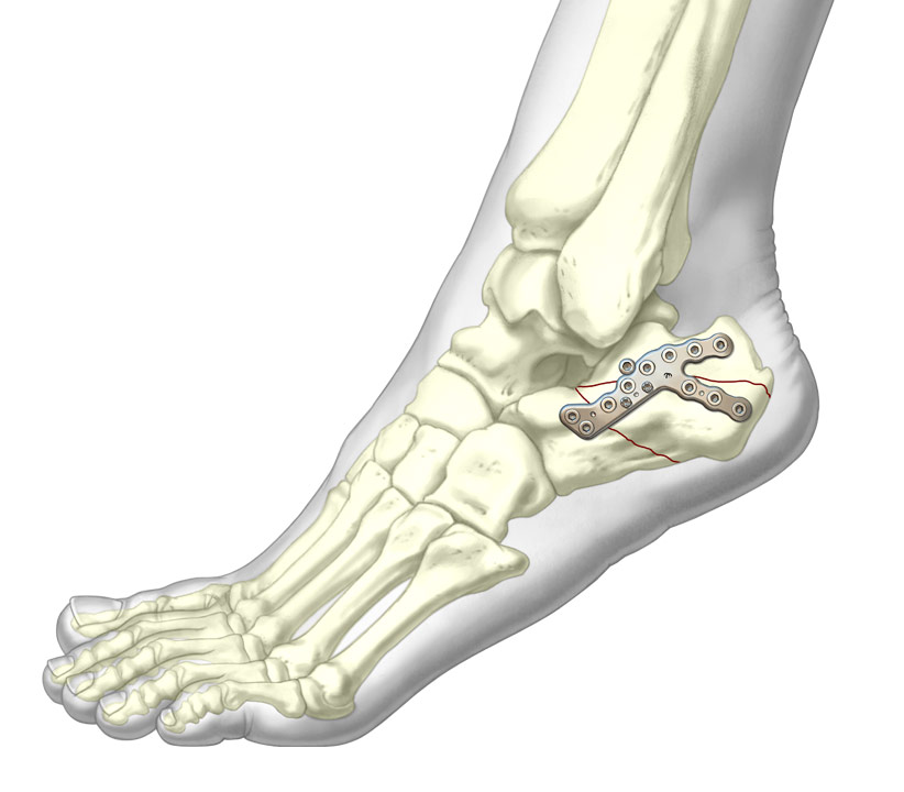 Sinus tarsi plate installed on 3d Calcaneus
