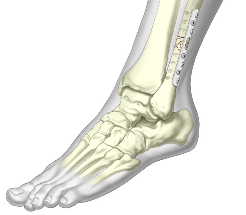3D illustration of Semi Tubular Plate system installed on fractured fibula
