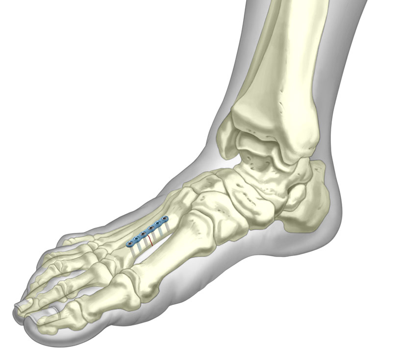 Straight plate system installed onto fractured metatarsal bone
