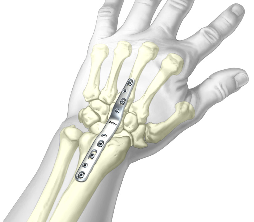 Graphic of installed Total Wrist Fusion Plate System