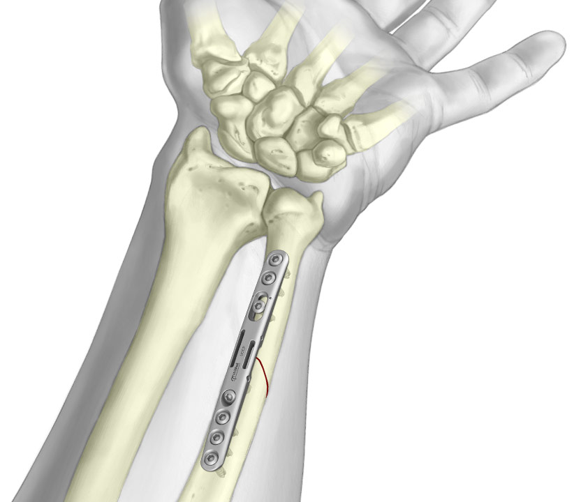 Graphic of Ulnar Osteotomy Compression Plate System
