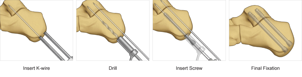 Surgical technique steps for screw system implants
