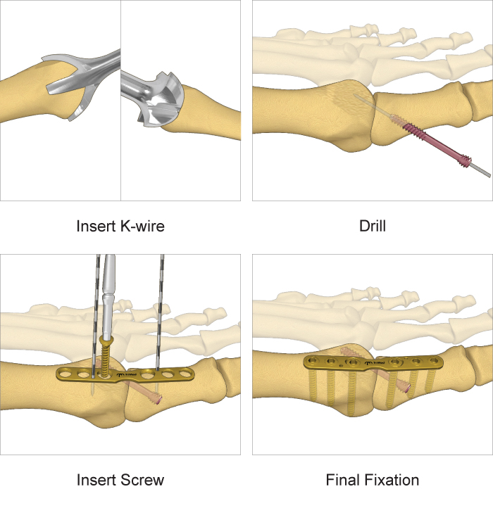 Metatarsolphalangeal Joint surgical technique
