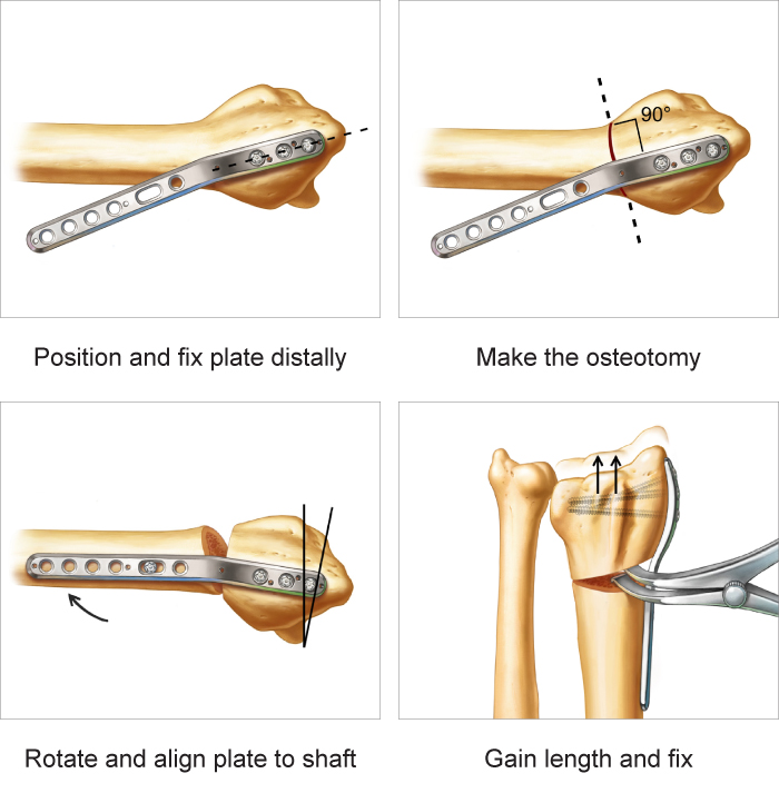 Radial Column Malunion Plate surgical technique