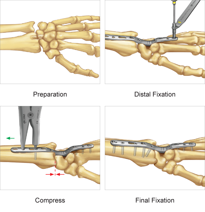 Total Wrist Fusion Plate surgical technique