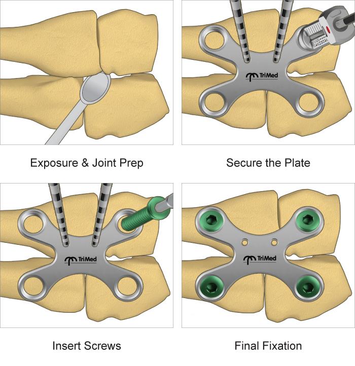 X-plate surgical technique