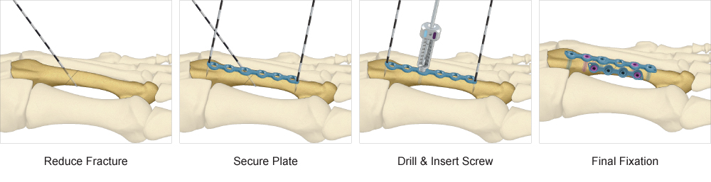Distal Xtremities Plates surgical technique
