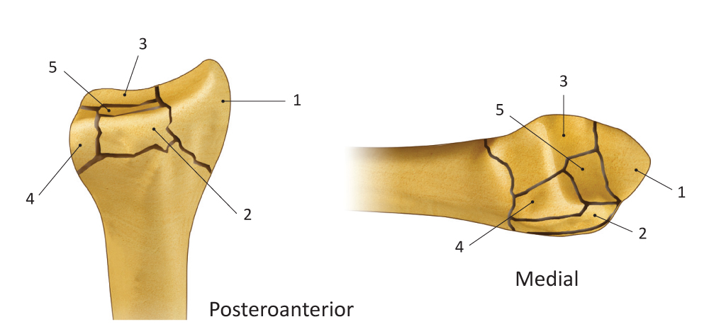 Fragment Specific Fixation classifications